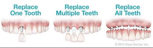 Dental implant options with teeth